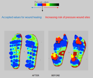 Parotec in Shoe Pressure Measurement