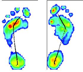 foot pressure print
